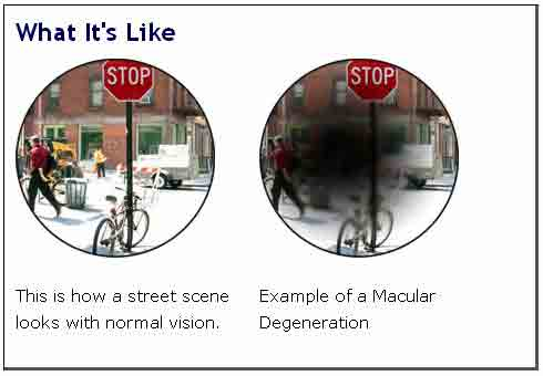 On the left you can see a street scene as perceived with normal vision, on the right, the same street as seen by someone with ARMD