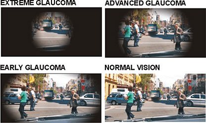 Glaucoma is a disease which causes damage to the optic nerve, the nerve that carries visual information from the eye to the brain.