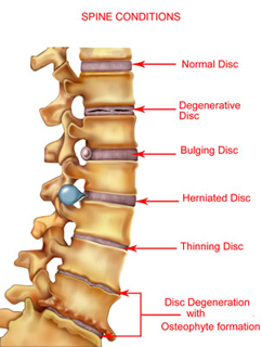 Various problems can alter the structure of the spine and/or damage the vertebrae creating pain and difficulties with mobility.
