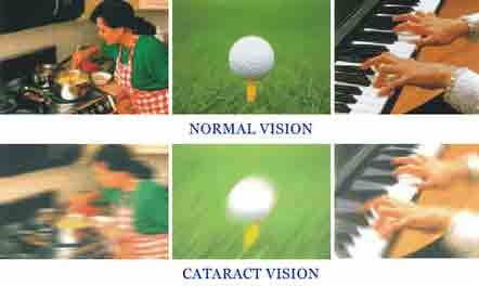 In this graphic, the top three pictures show normal vision, whereas the bottom three show vision with cateracts