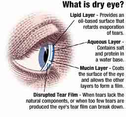 Dry eye is a condition in which there are insufficient tears to lubricate and nourish the eye.