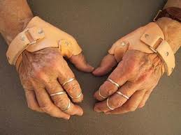 There are a number of reasons why an individual might use a hand split, including injuries to the wrist or hand.