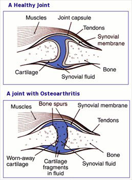 Cartilage is a flexible connective tissue found in healthy joints which stops the connecting bones from rubbing together,