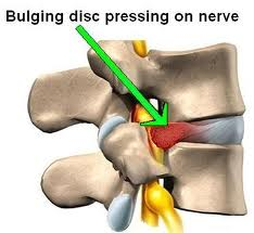 A herniated disc is a common back condition that leads to irritation of spinal nerves and can cause pain in the back, hips and legs.
