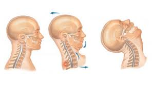 The cervical spine is flexible, allowing the head to move in all directions. It begins at the base of the skull, comprises 7 vertebrae with 8 pairs of cervical nerves.