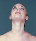 A double chin is a layer of subcutaneous fat under the chin that sags down, giving the impression of a second chin..