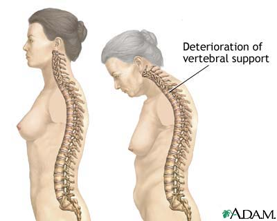 osteoporosis causes:bone degeneration provoked by calcium deficiency and low levels of sex hormones are some of the causes of osteoporosis