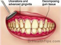 rench mouth is a very painful gum infection caused by bacterial involves swelling (inflammation) and crater-like ulcers in the gums.