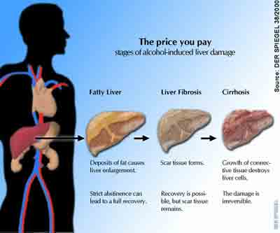 The three types of  Liver Disease - fatty liver, hepatitis, and cirrhosis of the liver