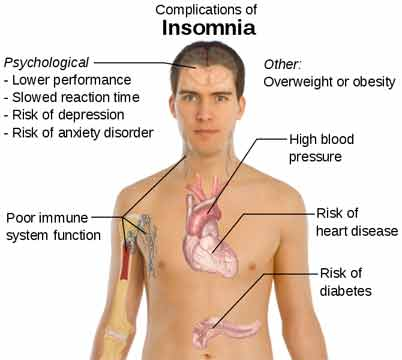 This chart shows the different complications of insomnia