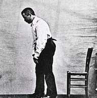 This parkinsons patient was photographed circa 1892 - Public Domain Photo